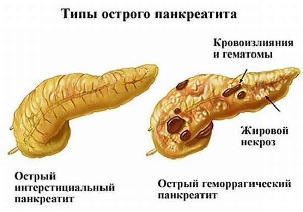 Виды панкреатита