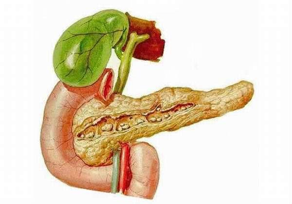 нерастворимые агрегаты в поджелудочной железе