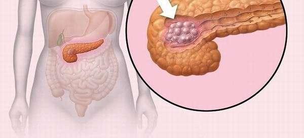 Полипы в поджелудочной железе как вылечить
