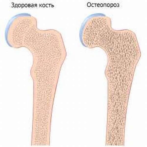 Избыток фосфора провоцирует остеопороз