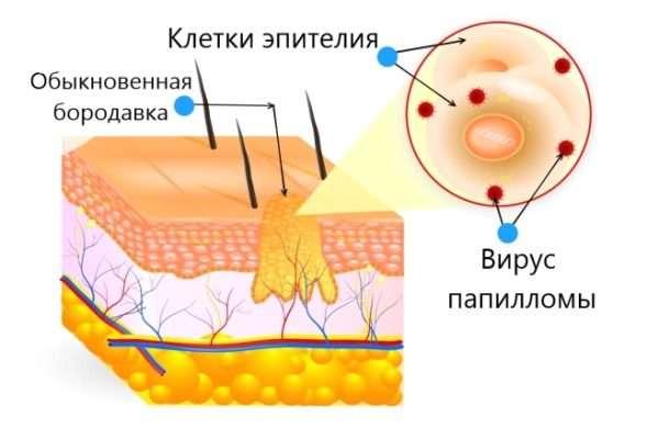 Пути заражения и механизм проникновения в организм ВПЧ – вируса папилломы человека