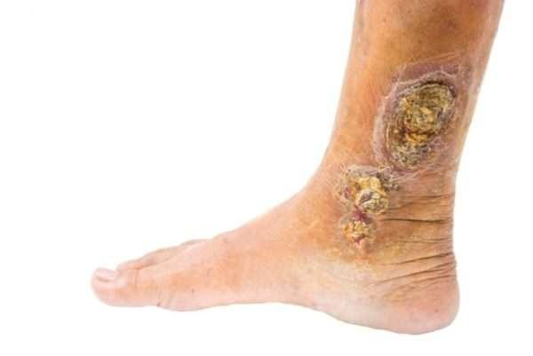 Какие препараты используются для лечения трофических язв на ногах