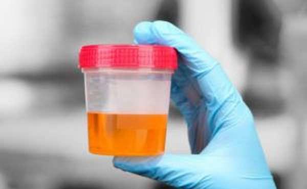 Оранжевая моча: причины мочи оранжевого цвета у женщин и мужчин, ребенка, признаки и лечение