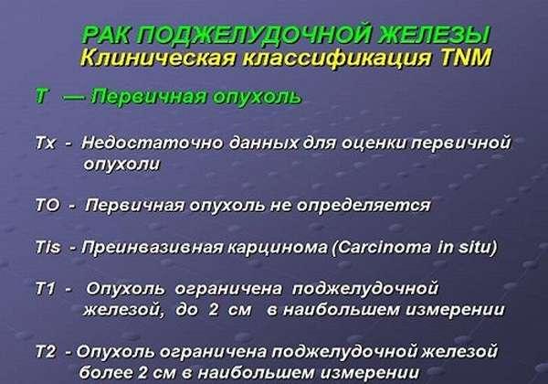TNM-классификация