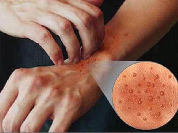 Капли от зуда при дерматите
