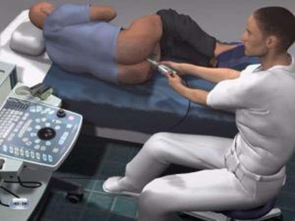 массаж предстательной железы прибором