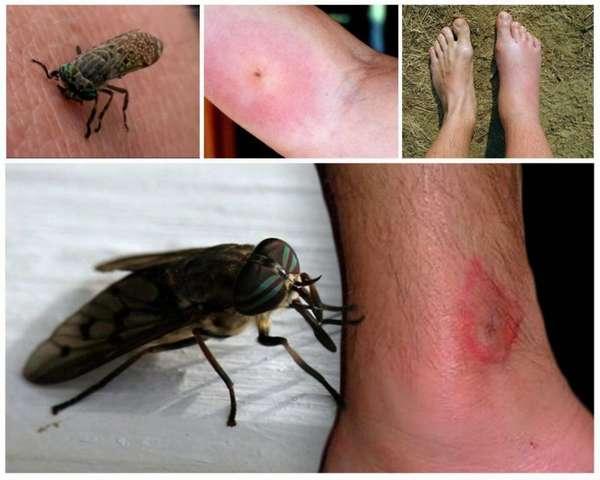 Домашние средства от аллергической сыпи
