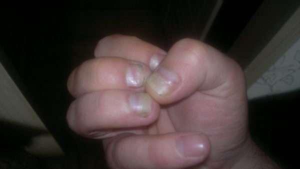 У ребенка слоятся ногти на руках: возможные причины, симптомы, лечение