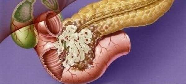 Четвертая стадия рака поджелудочной железы
