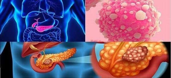 Опухоль поджелудочной железы лечение