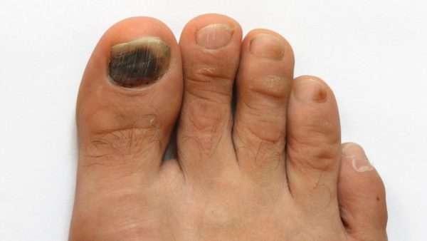 Белый налт на ногте большого пальца ноги