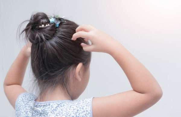 Гниды на волосах человека: что это, как выглядят, как вывести и откуда появляются?