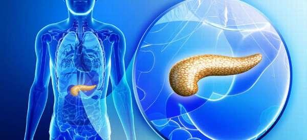 Хроническая и острая калькулезная форма панкреатита