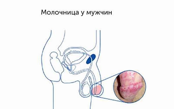 Грибковые заболевания полового члена