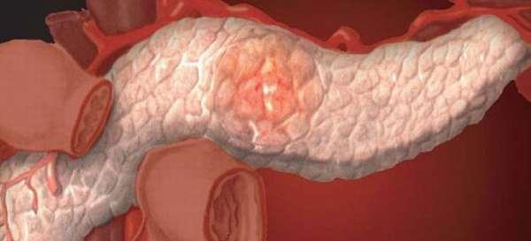 Заболевания поджелудочной железы: классификация и методы лечения поджелудочной у мужчин и женщин