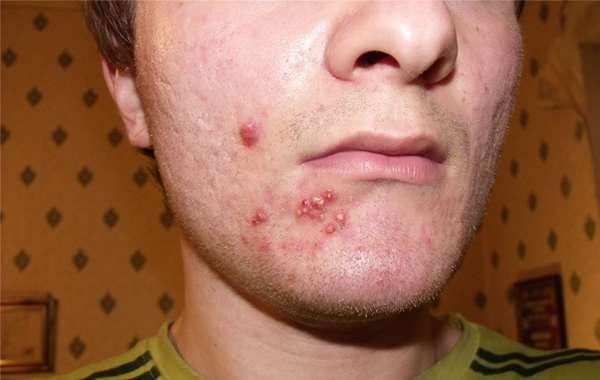 Как выглядит аллергия на подбородке