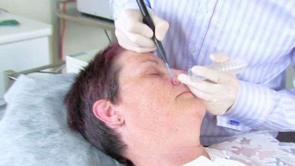 Как избавиться от жировиков на носу