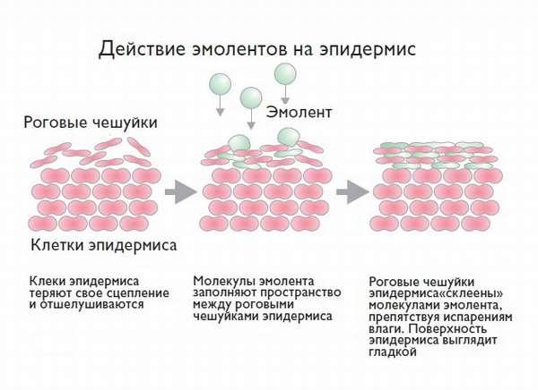 Особенности использования эмолентов при терапии атопического дерматита у ребенка
