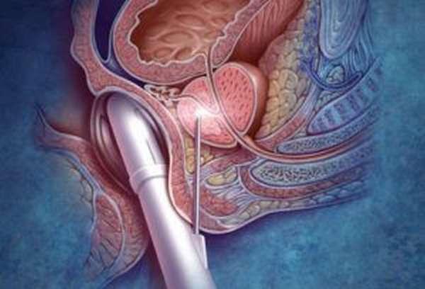 стимуляция предстательной железы