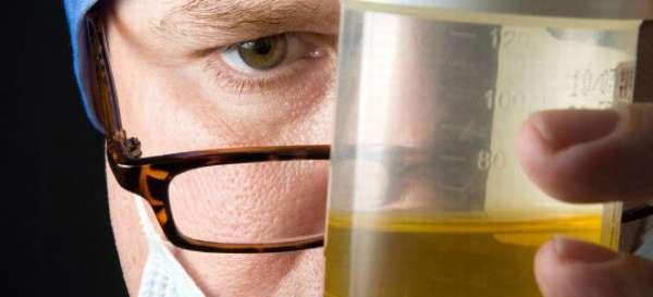 Результаты исследования диастазы мочи у взрослых при развитии панкреатита