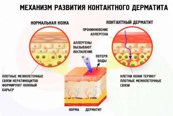 Атопический дерматит заразен или нет — Аллергия