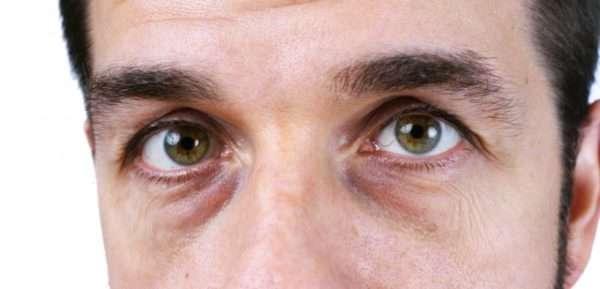 Как убрать синяки под глазами: косметологические процедуры от мешков и синяков под глазами