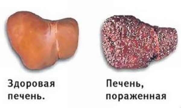 Проблемы с печенью