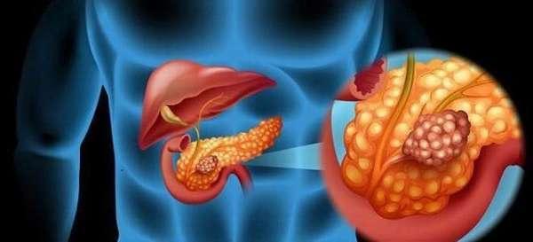 Проведение дренажа на поджелудочной железе: послеоперационная необходимость и результат