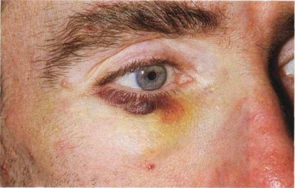 Лечение синяков в углах глаз