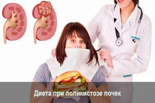 Лечение поликистоза почек