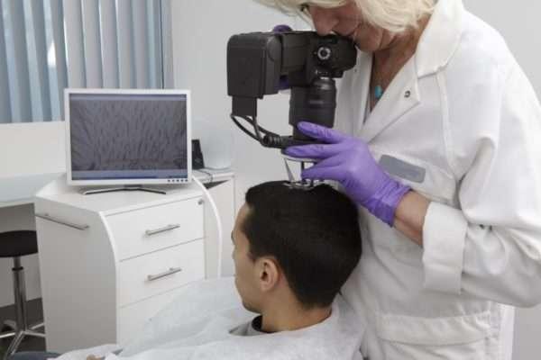 Симптомы и лечение себорейной алопеции
