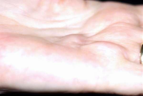 Жир под кожей рук thumbnail