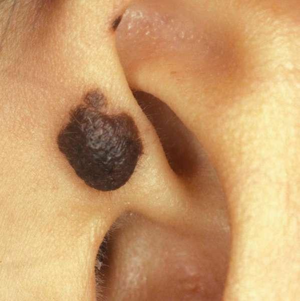 Родинки на ушах у женщин и мужчин: значение, удаление