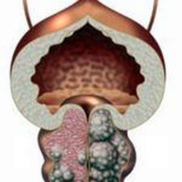 Инструкция по применению прибора Мавит при лечении простатита