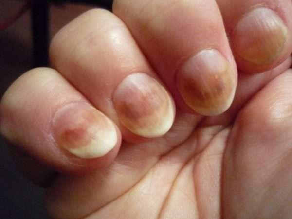 Инструкция по применению Ирунина при грибке ногтей