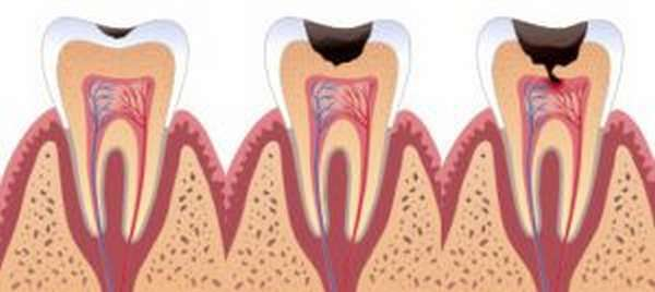 Развитие кариеса влияет на появления запаха в полости рта