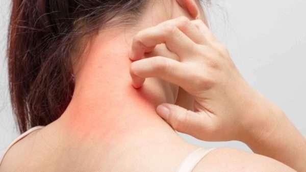 Чесотка на нервной почве симптомы лечение