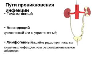 Пути проникновения инфекции в почки