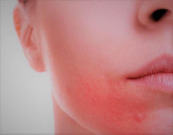 Пероральный (периоральный) дерматит на лице: лечение, фото, отзывы