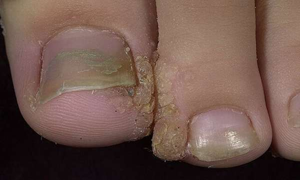 Нарост между пальцами ног фото