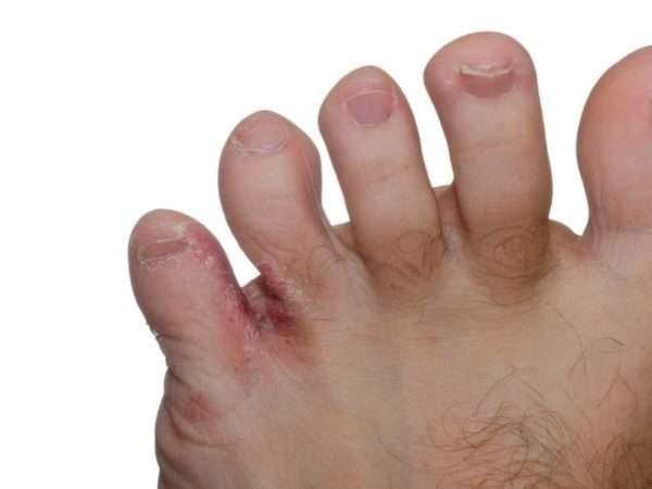 Сыпь на ноге между пальцами сильный зуд
