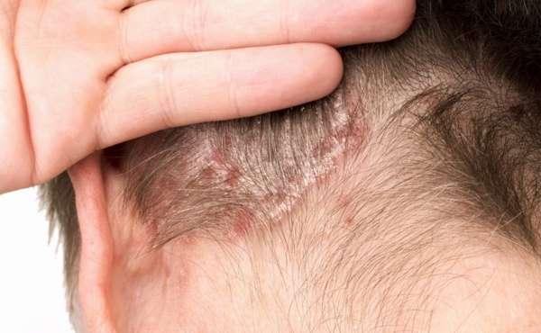 Способы лечения псориаза с помощью перекиси водорода