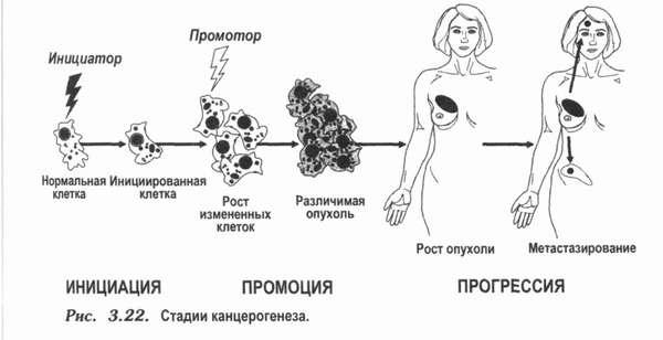 Меланома головного мозга мкб 10 thumbnail