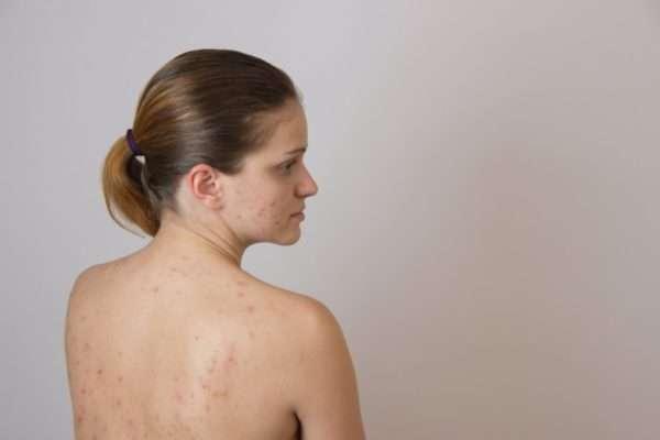 Сыпь на теле у взрослого фото с пояснениями что это может быть