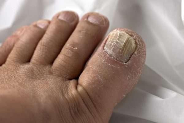 Применение березового дегтя от грибка ногтей