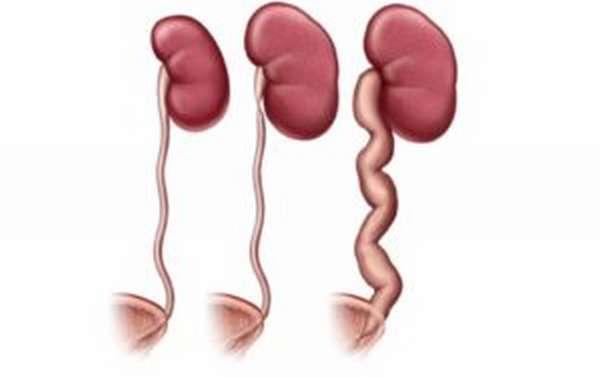Пиелоэктазия при беременности