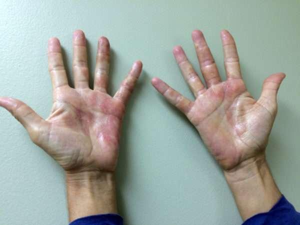 Как снять зуд кожи рук