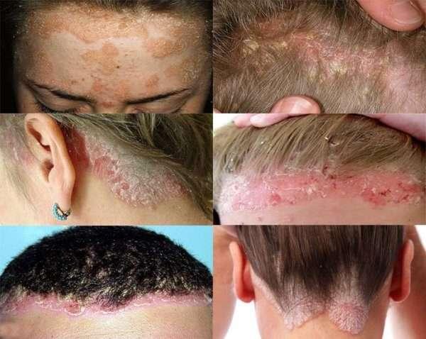 Возможные причины появления на голове белых пятен с коркой наподобие перхоти