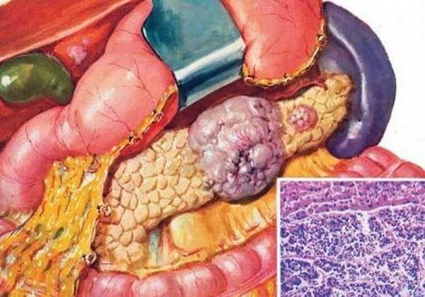 Метастазирование опухоли ПЖ